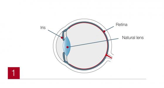 Cataract1