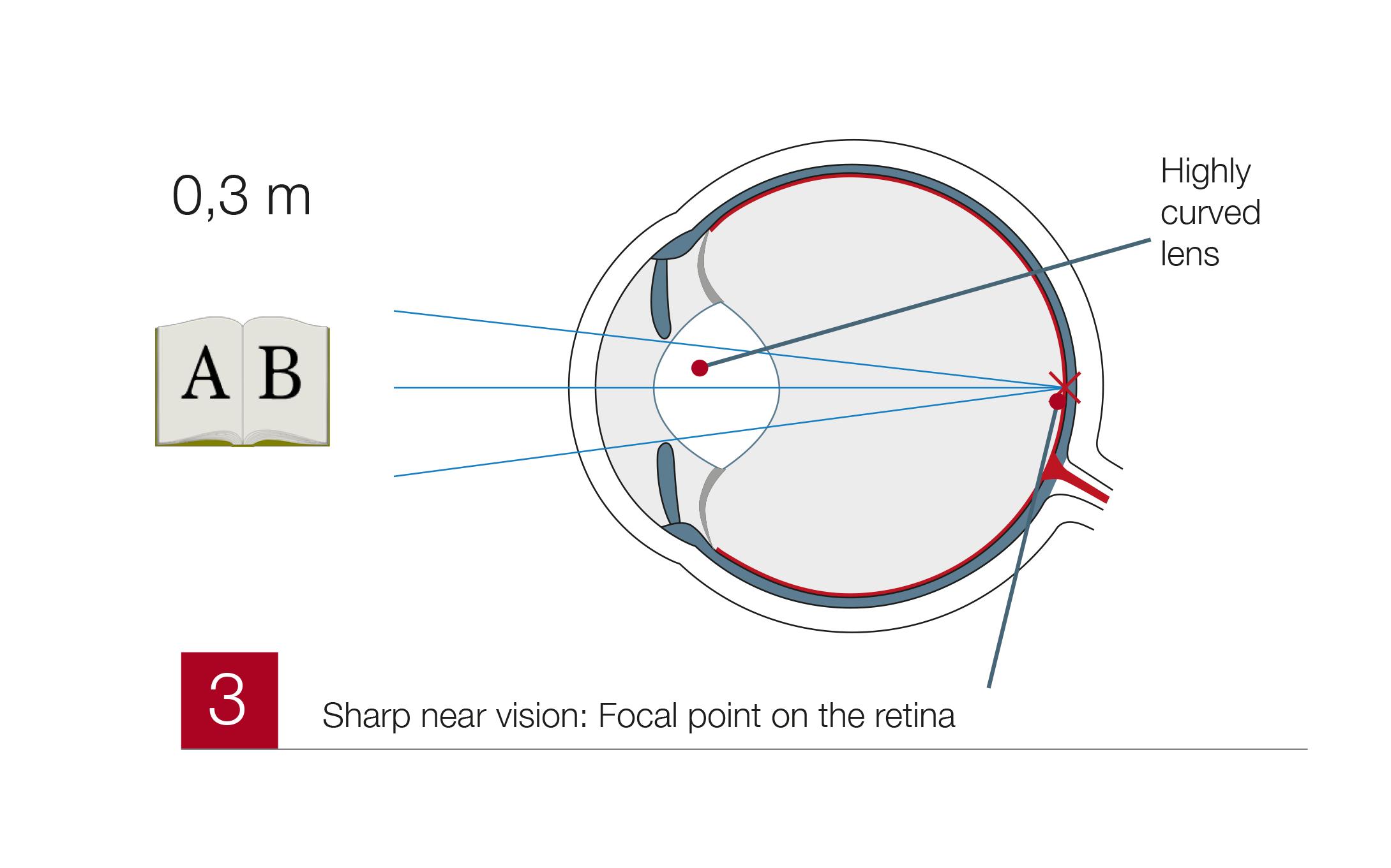 Presbyopia3