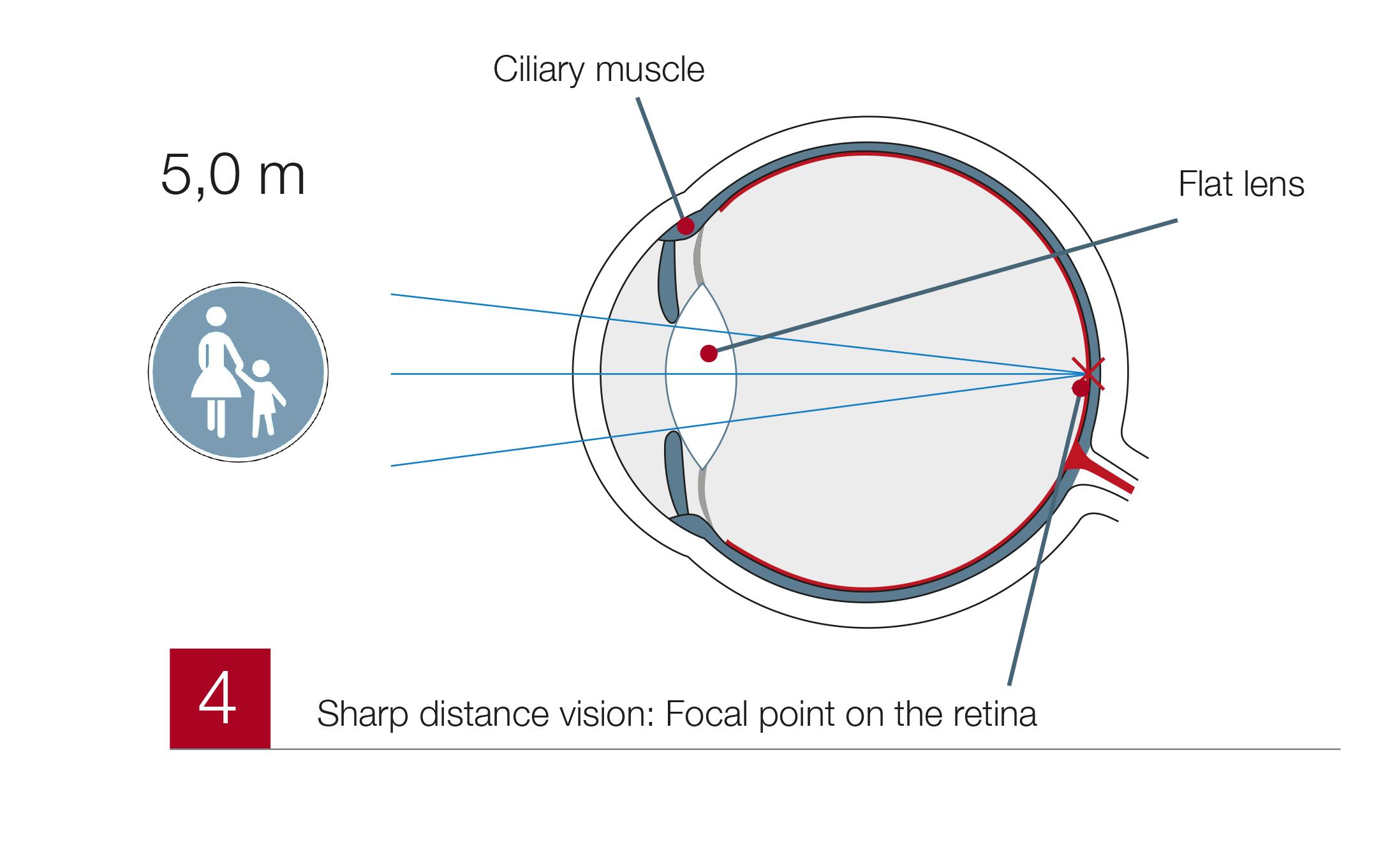 Presbyopia4