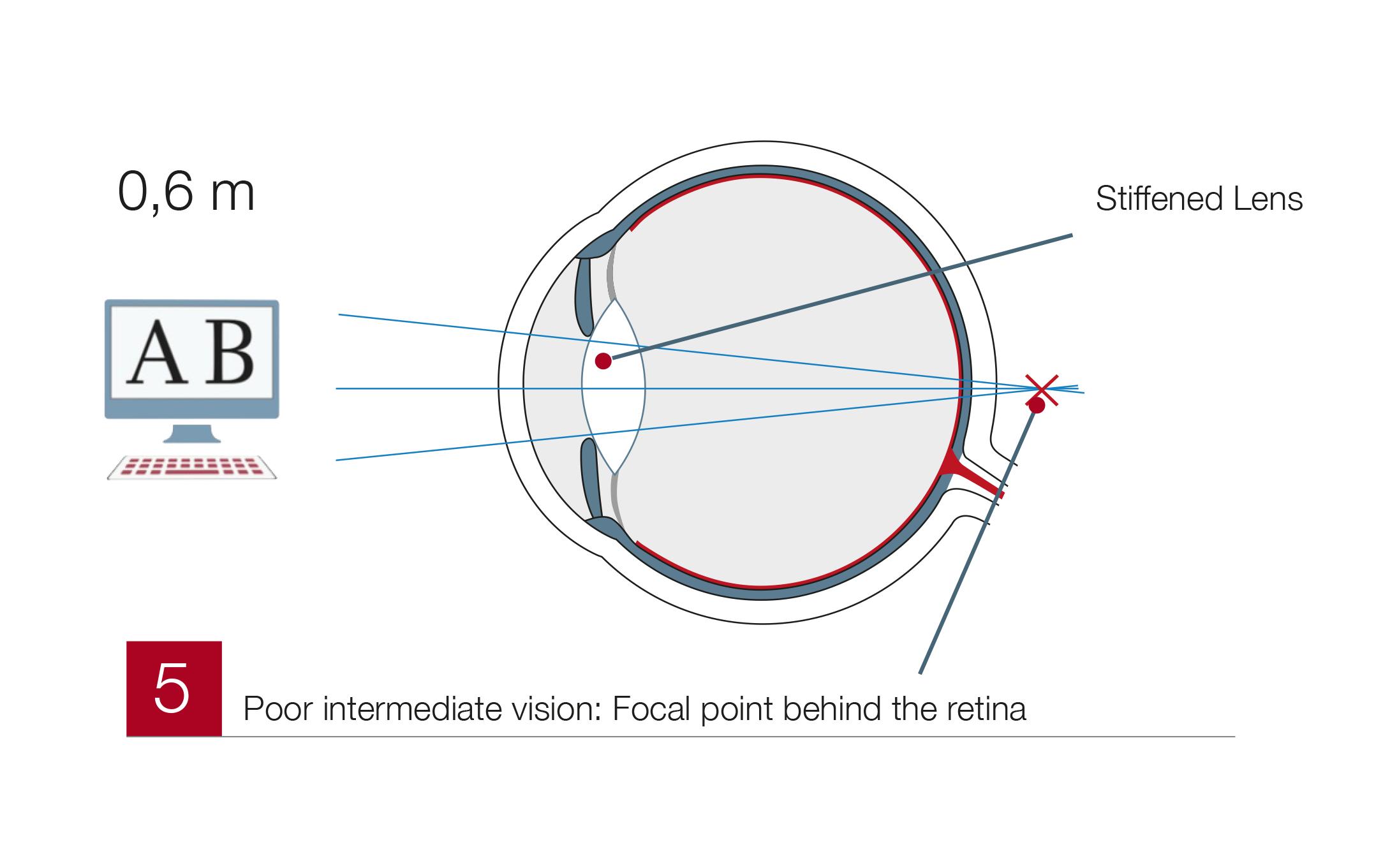 Presbyopia5