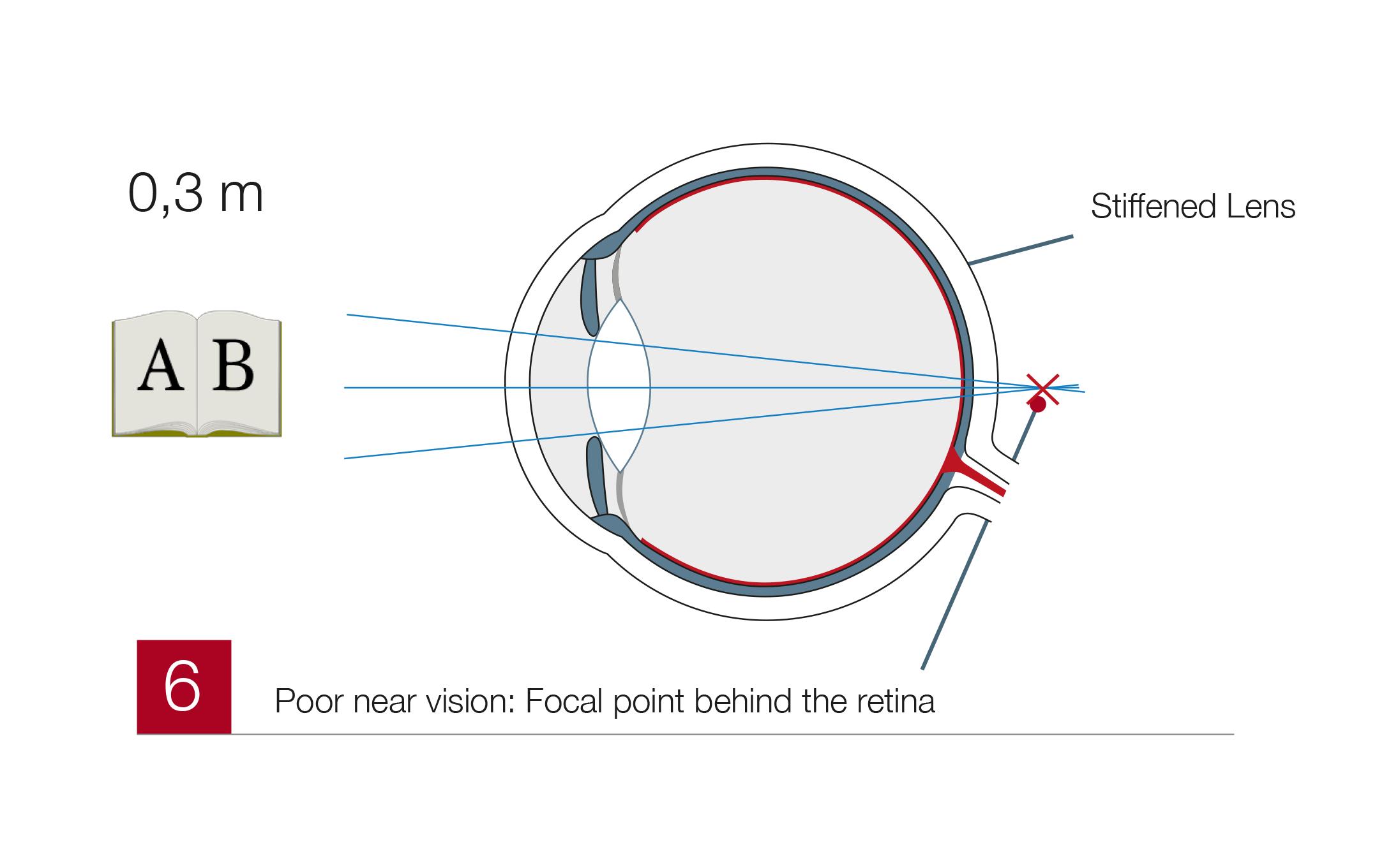 Presbyopia6