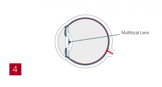 Multifocal4