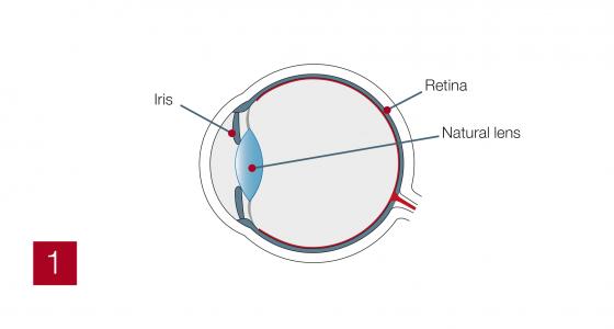 Multifocal1