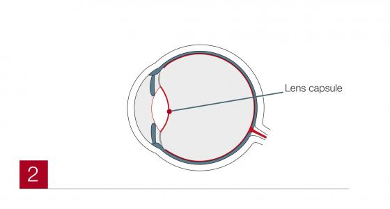 Cataract2