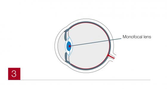 Cataract3